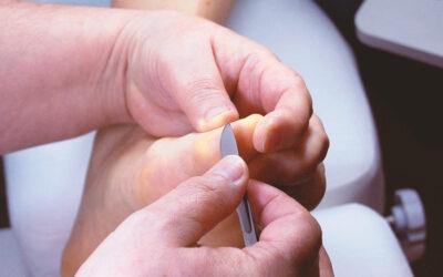 Gyógypedikűr I. – Speciális bőrproblémák kezelése