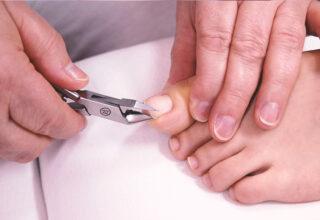 Gyógypedikűr II. – Speciális köröm elváltozások kezelése